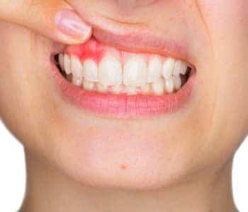 Gum &  Bone Disease